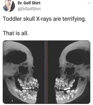 Toddler Skull X Rays Are Terrifying That Is All Ifunny